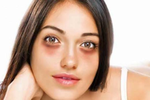 bags and dark circles under the eyes how to remove