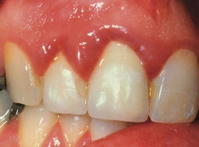 how to treat inflammation of the gums
