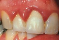 Inflamed gums, what to do? Ask the dentist