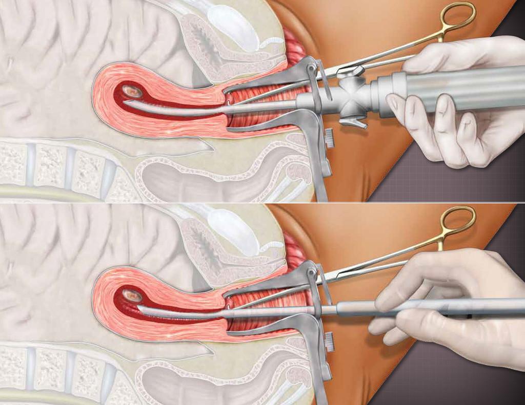 inclinic abortion procedure abortion methods - HD1024×791