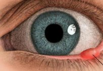 The internal stye on the lower eyelid: treatment, possible causes and consequences
