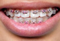 The advantages of braces: types and cost of braces