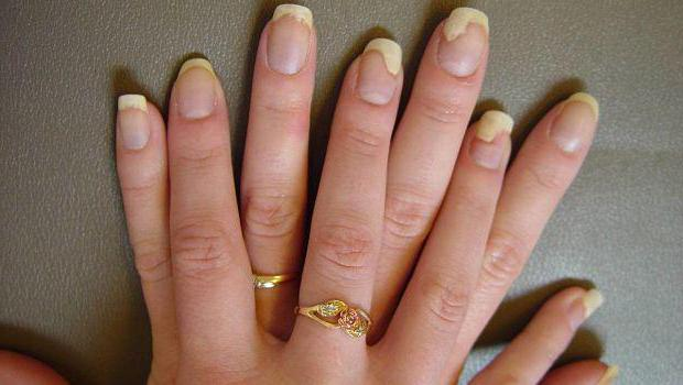 how to identify nail fungus