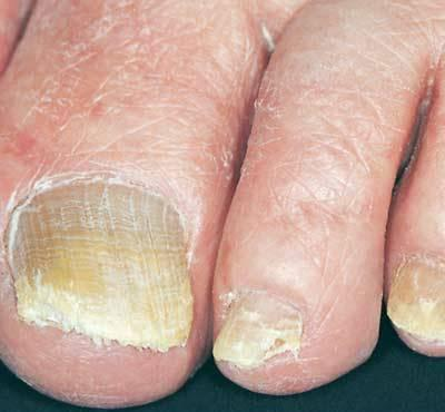 the signs of nail fungus on feet