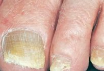 Tools from nail fungus on feet treatment and prevention
