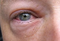 If swollen eyes, the causes may be different. This applies both to adults and to children