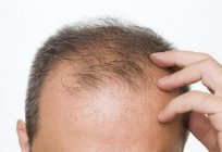 The drug from hair loss